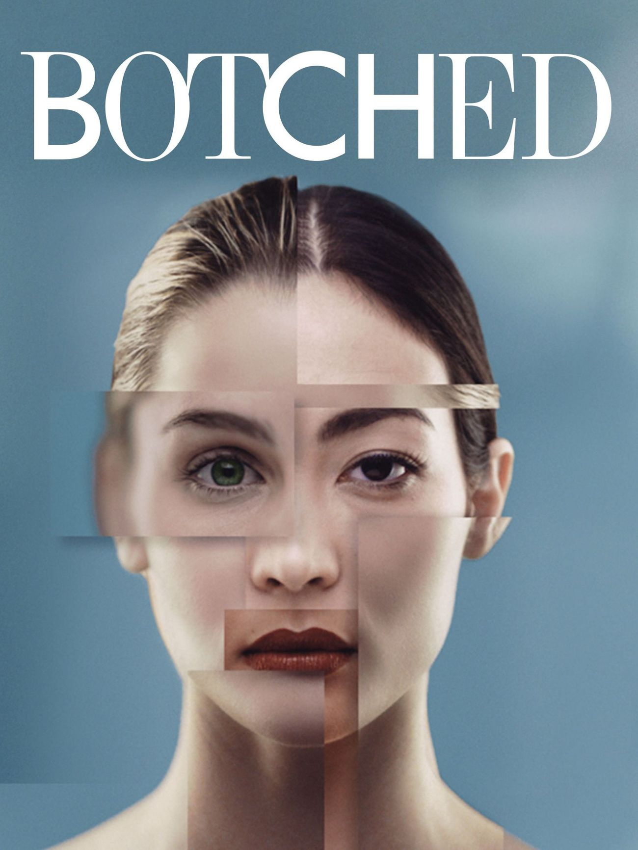 Botched Season 1 123Movies